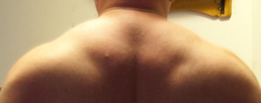 sept 27 08 back of neck
