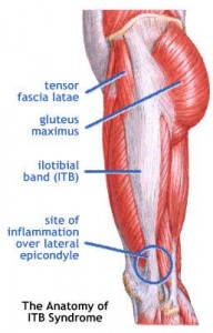 Knee pain? Hip pain? Low back pain while running? Check your ITB.